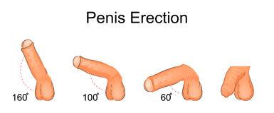 Erección - disfunción eréctil